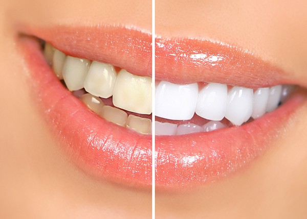 Get rid of teeth stains