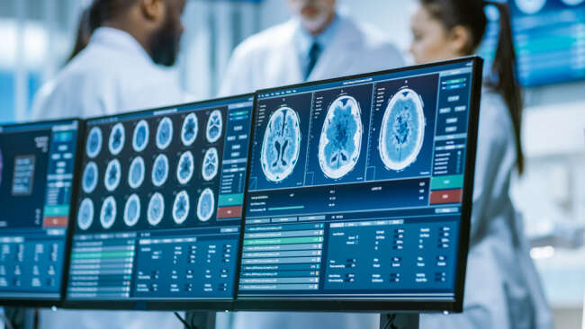 Brain Scans Are Used To Determine The Risk Of Alzheimer's